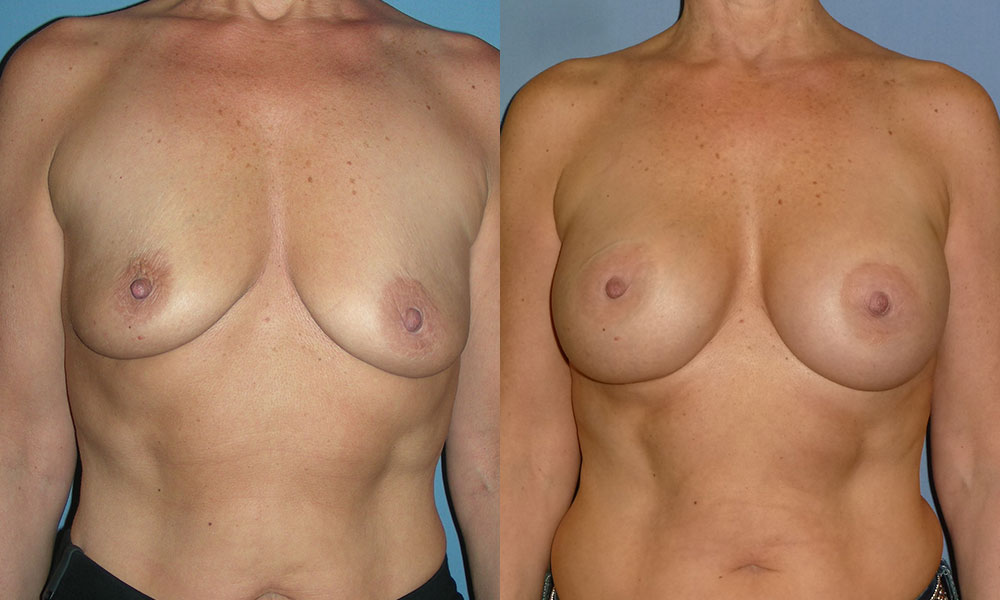 Breast Augmentation Patient #1 | Spectrum Plastic Surgery