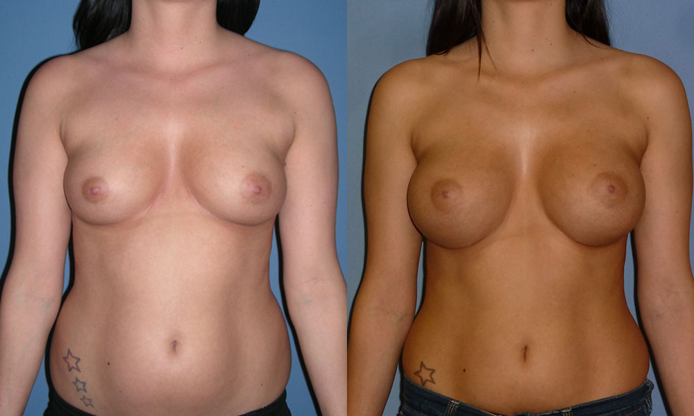 Breast Augmentation Patient #2 | Spectrum Plastic Surgery