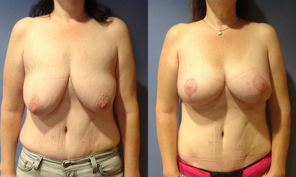 Breast Aug with Lift Patient #2 | Spectrum Plastic Surgery