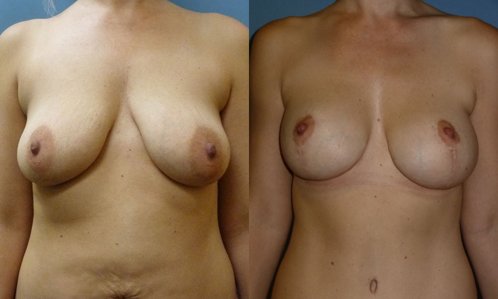 Breast Aug with Lift Patient #3 | Spectrum Plastic Surgery