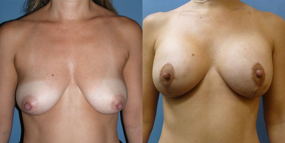 Breast Aug with Lift Patient #4 | Spectrum Plastic Surgery