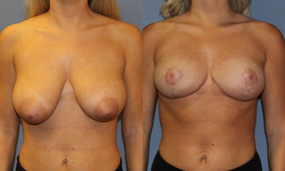 Breast Lift Patient #3 | Spectrum Plastic Surgery