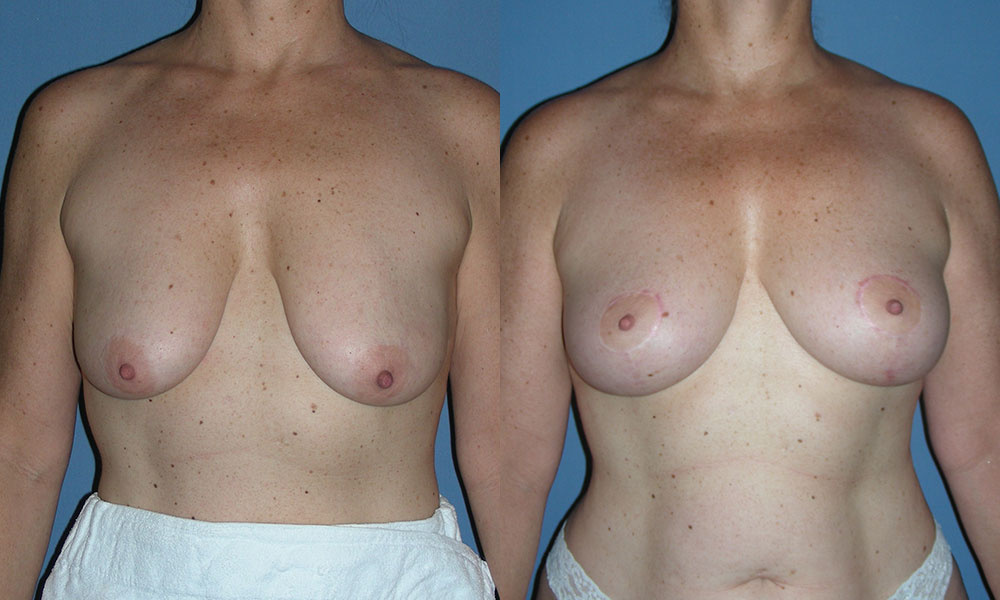 Breast Lift Patient #5 | Spectrum Plastic Surgery