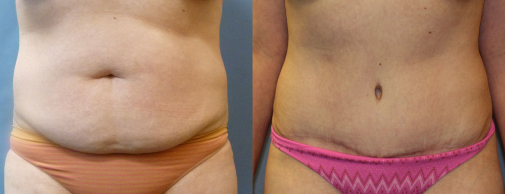 Tummy Tuck with Liposuction Patient #3 | Spectrum Plastic Surgery